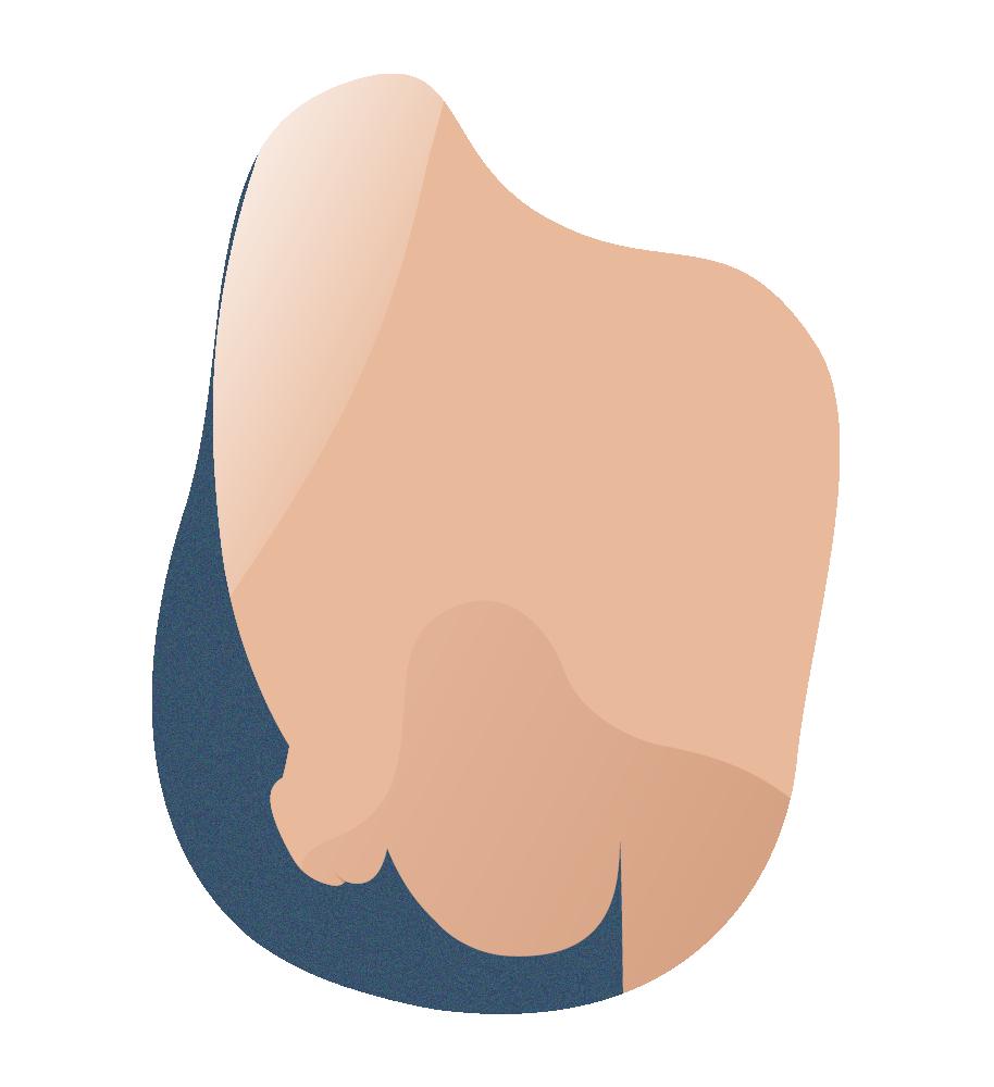 1.1 g andromedi tecnica liposuccion pubis 01