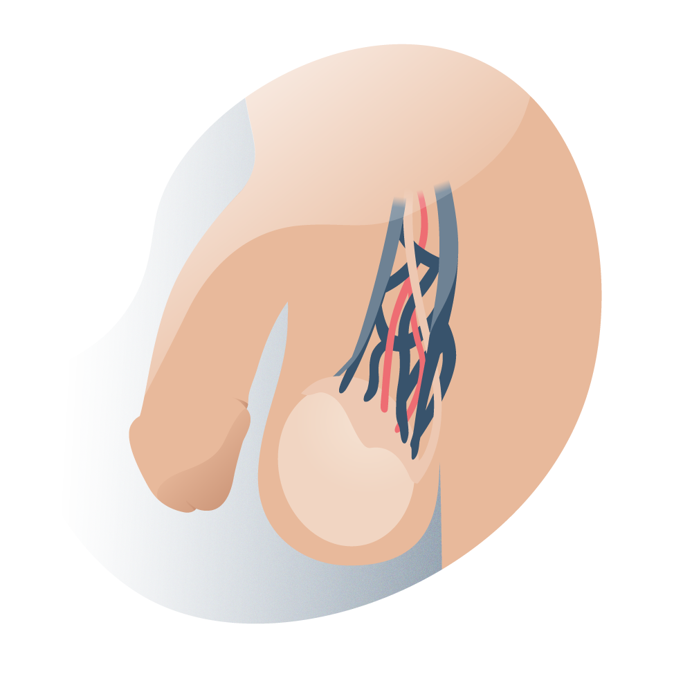 andromedi evolucion negativa de varicocele 03