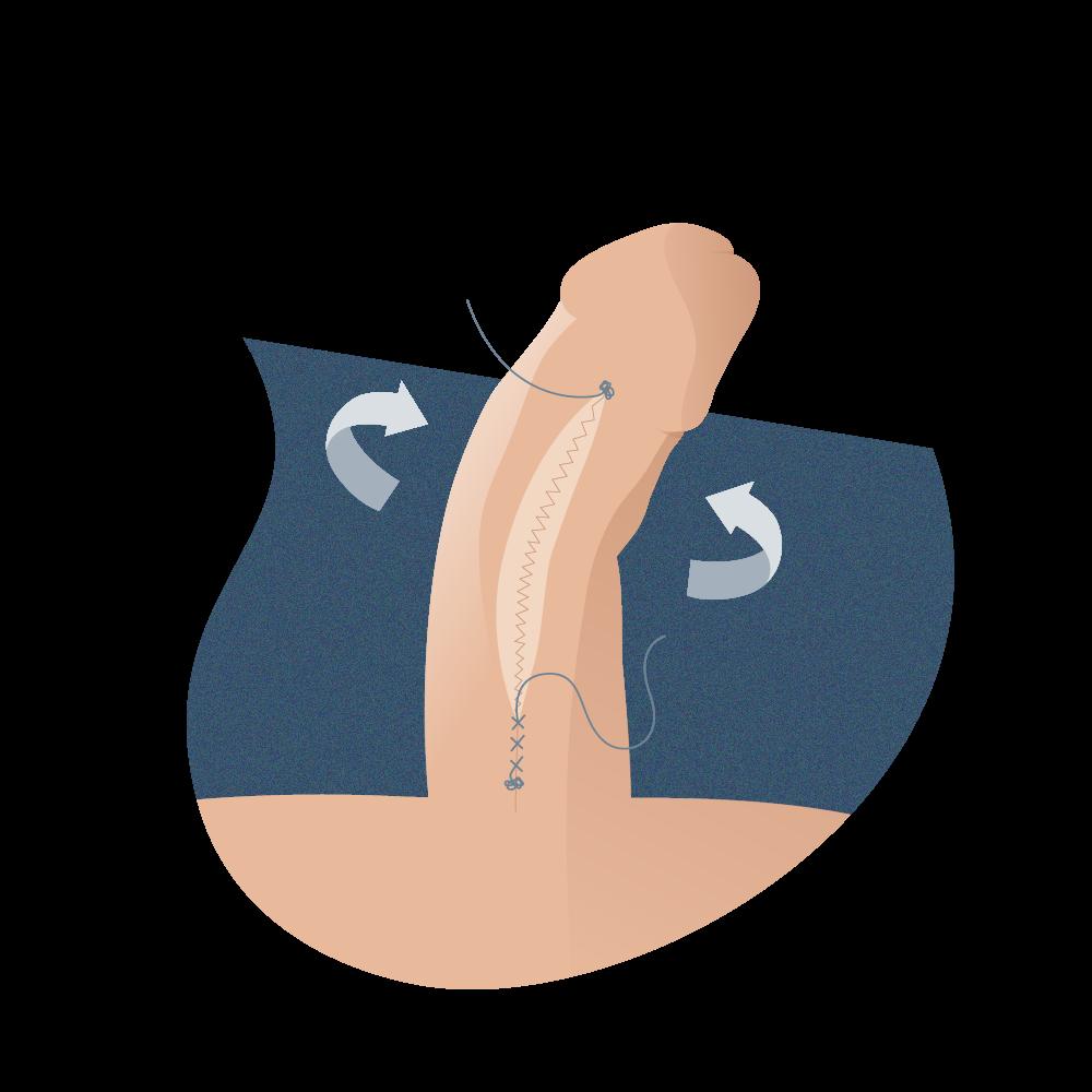 rotación de cuerpos cavernosos