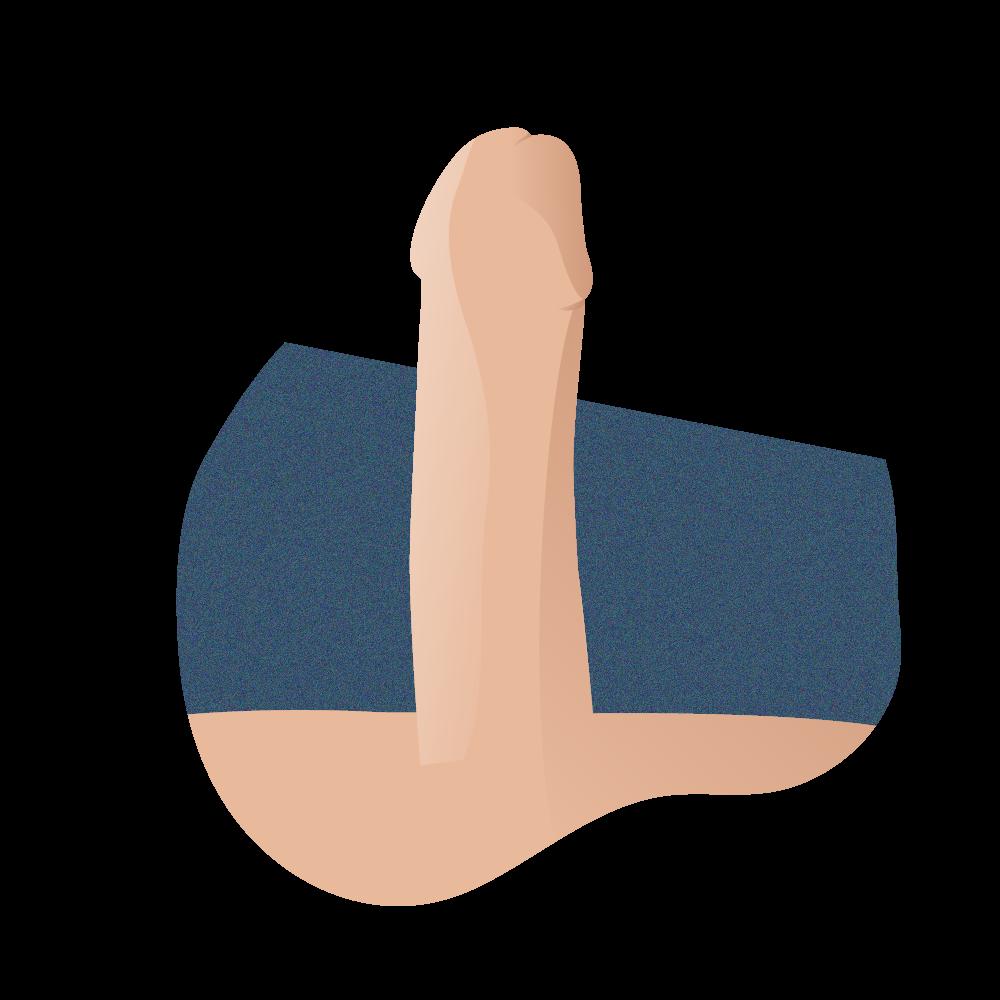 resultado rotación de cuerpos cavernosos