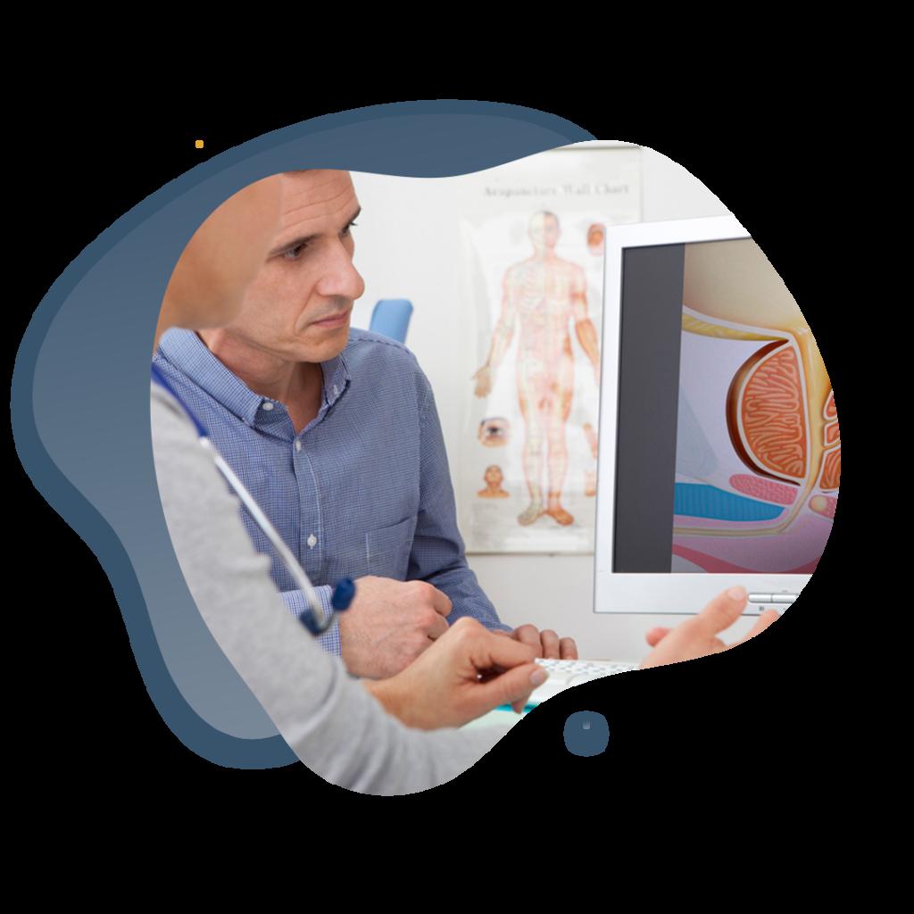 tumores en urología
