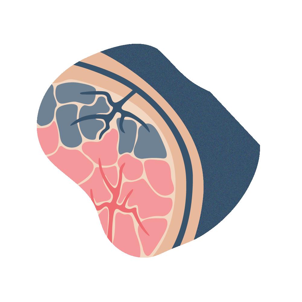 andromedi oclusion venosa durante la ereccion 02