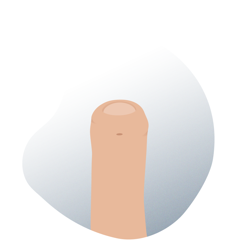 andromedi cirugia hipospadias 01