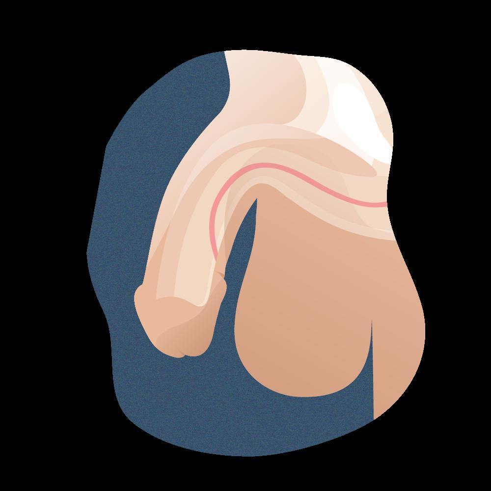 andromedi tipos de hipospadias segun su posicion lateral 03