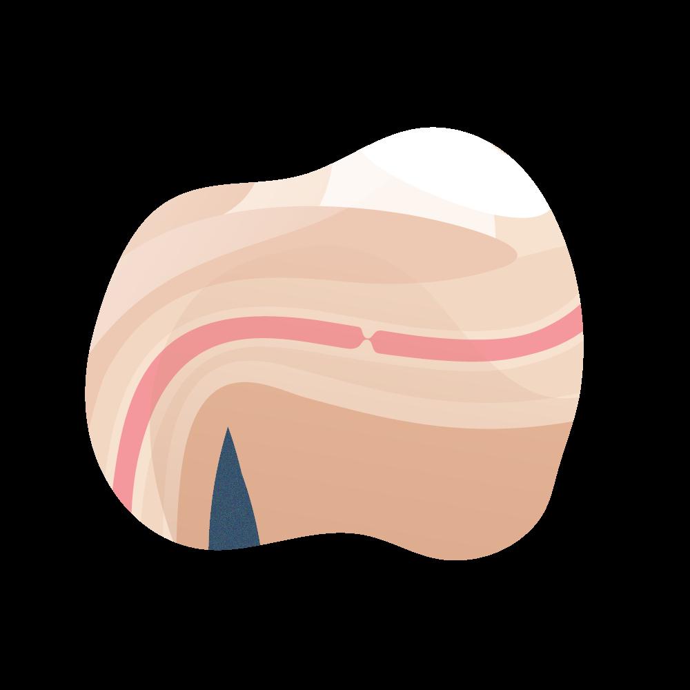 andromedi clasficacion de la estenosis de uretra 02