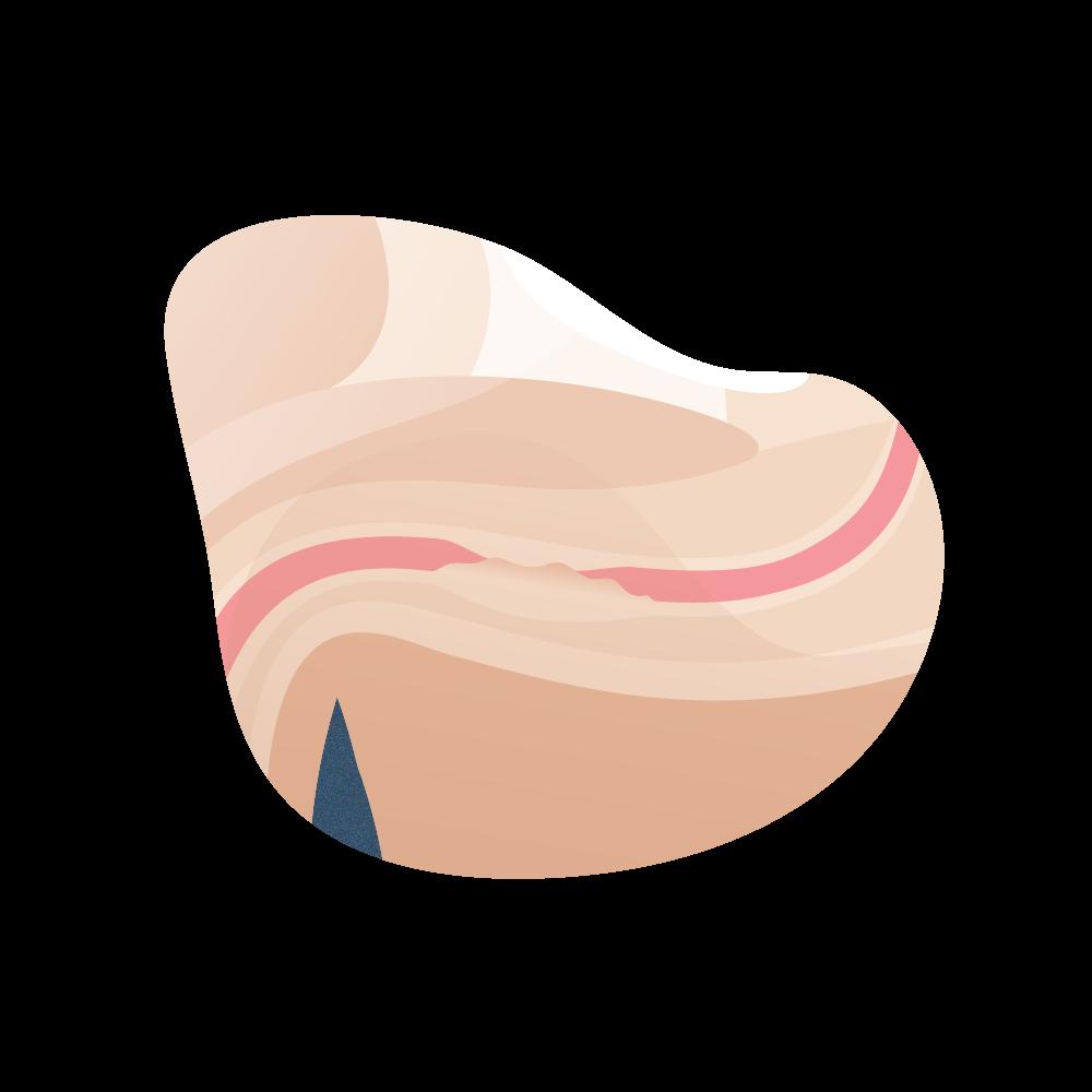 andromedi clasficacion de la estenosis de uretra 04
