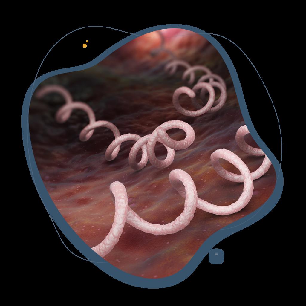 Sifilis principal