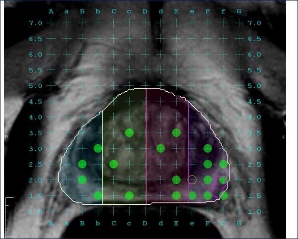 biopsia por fusion andromedi sevilla4