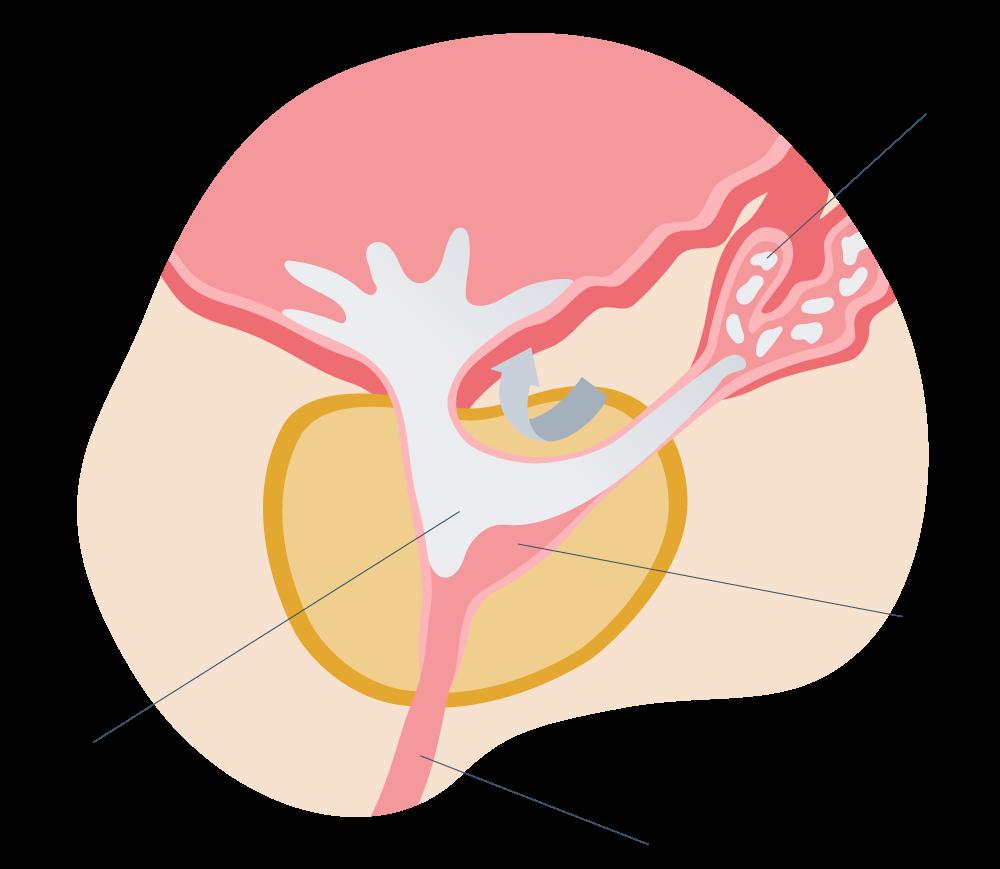 Eyaculación retrógrada exlplicación