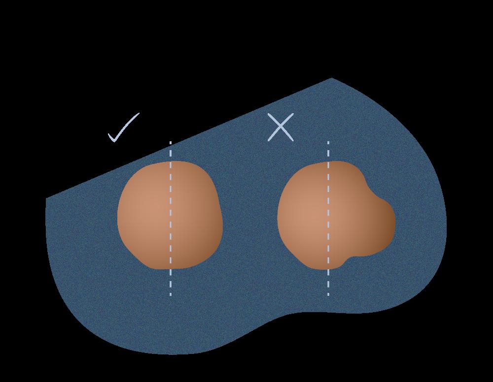andromedi clasificacion de lunares potencialmente dañinos 01