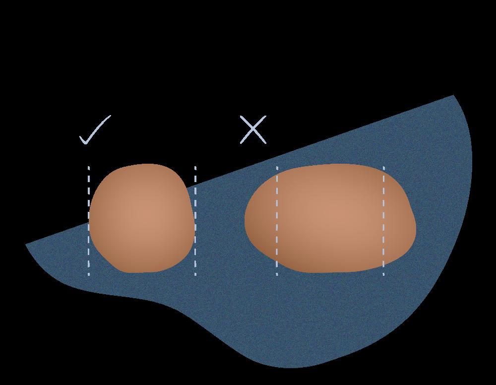 andromedi clasificacion de lunares potencialmente dañinos 04