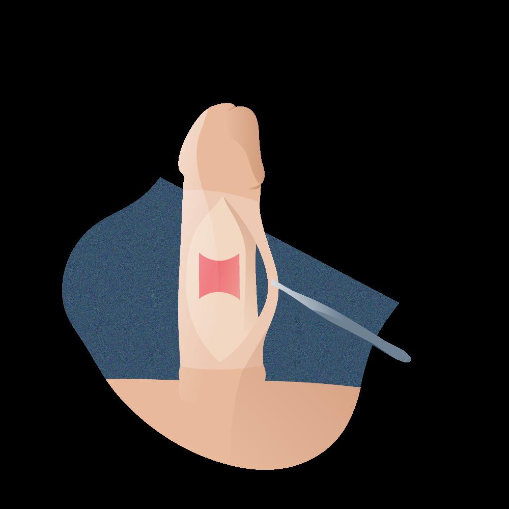 andromedi tratamiento quirurgico peyronie 02