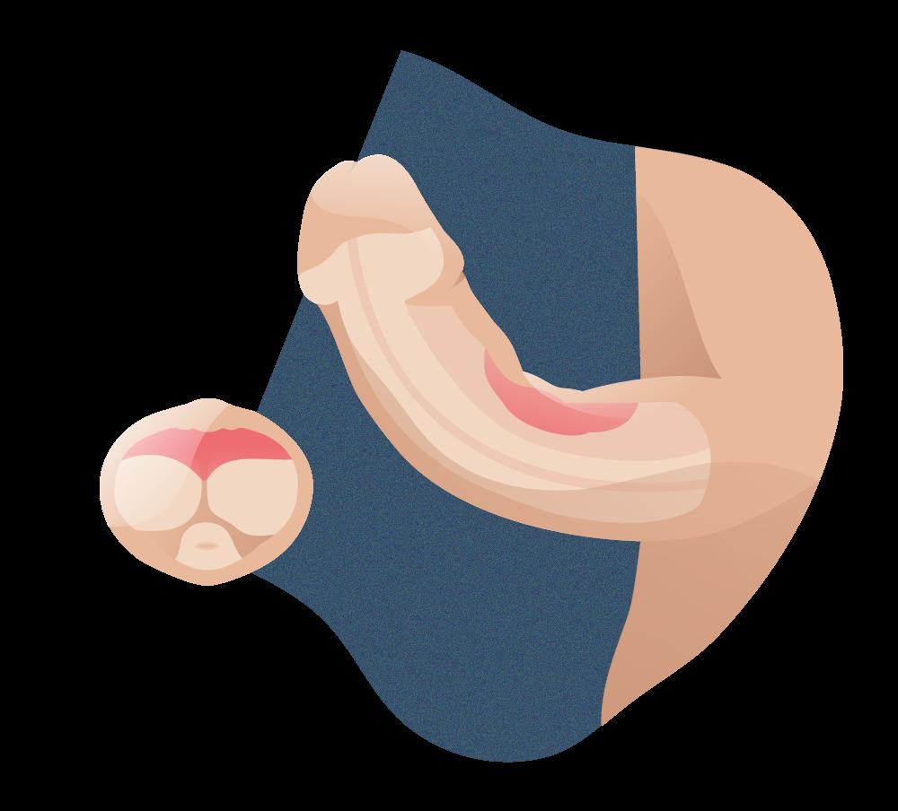 andromedi placas fibroticas en la enfermedad peyronie 01