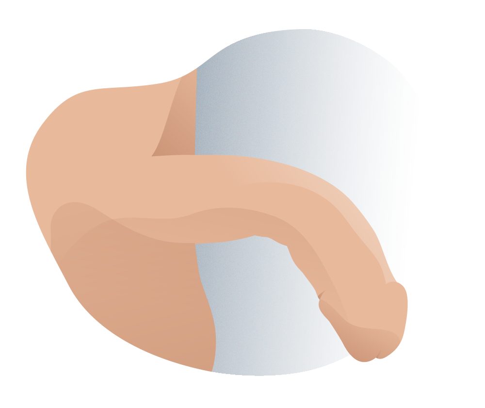 andromedi diferencia curva lateral dorsal 03