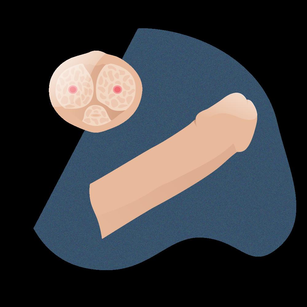 andromedi implante de pene sustitucion cuerpos cavernosos 01