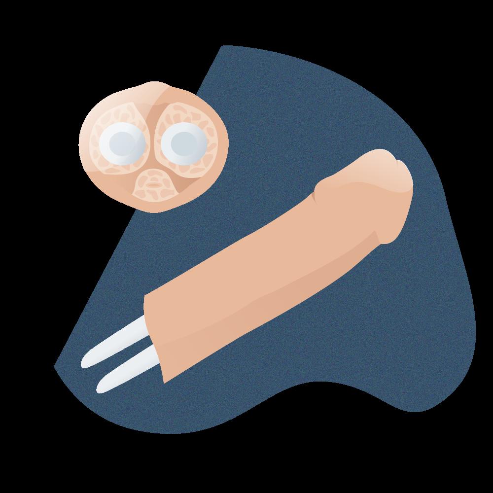 andromedi implante de pene sustitucion cuerpos cavernosos 02
